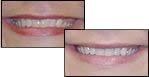 Immediate Teeth Whitening Results with Oxford OH Dentist Dr. Lloyd